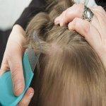 Inilah 12 Cara Hilangkan Kutu Rambut. Boleh Cuba!
