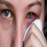 11 PUNCA Menyebabkan Sakit Mata Yang Perlu Anda Elakkan.