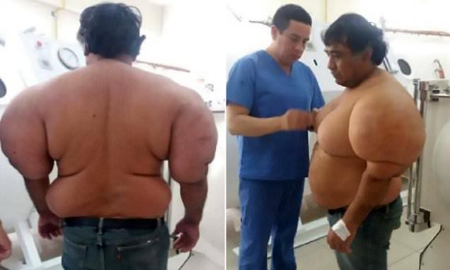 Lelaki Sengsara Badan Bengkak Berketul-ketul. Hasil Siasatan Doktor Lebih MENGEJUTKAN Lagi.