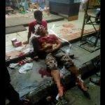 Pemilik Kedai Parah Diserang 4 Penyamun