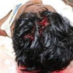Gara-Gara Pintu Pagar, Dua Beranak Cedera Diserang Jiran