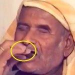Ini Punca Lelaki Makan 250 Gram Batu Sehari Selama Lebih 30 Tahun