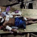 Seorang Lelaki Orang Asli Cedera Parah Diserang PAK BELANG.