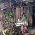 Suri Rumah Derita, Alami Penyakit Pendarahan Urat Betis