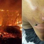 Enam Beranak Melecur Dalam Kebakaran Rumah